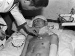 Chinese victim of Japanese chemical weapons being treated in a military hospital in Chongqing, China, 1941, photo 1 of 2